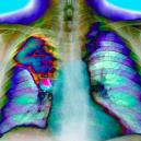 Jak vypadají nemoci, které nás zabíjejí nejčastěji? - snimek-obrazovky-2018-07-24-v-11-21-13