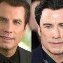 Seberte odvahu a prohlédněte si to nejhorší z plastické chirurgie slavných mužů - John Travolta