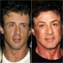 Seberte odvahu a prohlédněte si to nejhorší z plastické chirurgie slavných mužů - Sylvester Stallone