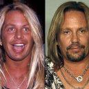 Seberte odvahu a prohlédněte si to nejhorší z plastické chirurgie slavných mužů - Vince Neil
