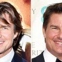 Seberte odvahu a prohlédněte si to nejhorší z plastické chirurgie slavných mužů - Tom Cruise