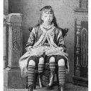 Myrtle Corbin: Dívka z Texasu, která měla čtyři nohy - 2vcg5e1