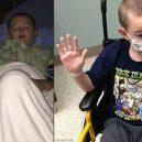 Chlapci nezastavitelně tvrdne kůže a postupně mu znemožňuje pohyb - chlapecnahledovka