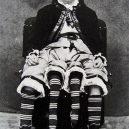 Myrtle Corbin: Dívka z Texasu, která měla čtyři nohy - myrtle-corbin-2fe56086-be56-487c-be71-5b412c894e5-resize-750