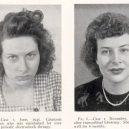 18 pacientů, kteří podstoupili lobotomii. Fotografie před a po tomto lékařském zákroku - lobotomy-before-and-after-1