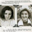 18 pacientů, kteří podstoupili lobotomii. Fotografie před a po tomto lékařském zákroku - lobotomy-before-and-after-12