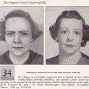 18 pacientů, kteří podstoupili lobotomii. Fotografie před a po tomto lékařském zákroku - lobotomy-before-and-after-13