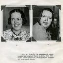 18 pacientů, kteří podstoupili lobotomii. Fotografie před a po tomto lékařském zákroku - lobotomy-before-and-after-15