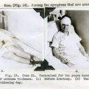 18 pacientů, kteří podstoupili lobotomii. Fotografie před a po tomto lékařském zákroku - lobotomy-before-and-after-16