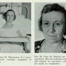 18 pacientů, kteří podstoupili lobotomii. Fotografie před a po tomto lékařském zákroku - lobotomy-before-and-after-18