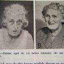 18 pacientů, kteří podstoupili lobotomii. Fotografie před a po tomto lékařském zákroku - lobotomy-before-and-after-3