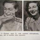 18 pacientů, kteří podstoupili lobotomii. Fotografie před a po tomto lékařském zákroku - lobotomy-before-and-after-7