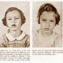18 pacientů, kteří podstoupili lobotomii. Fotografie před a po tomto lékařském zákroku - lobotomy-before-and-after-8