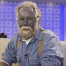 Modré zbarvení kůže existuje, hlavně v jedné americké rodině - 6gUbcKN7Uxenq7jMxdpuDCJMbJ1UiM6YcPh2vpuxJgZcZmUmkpYDKbktNWjfr9PTXLt9yp
