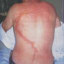 Roy Sullivan přežil (nejen) sedm různých zásahů bleskem - .png