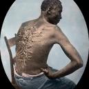 Fotografie, která surovostí vypověděla o otroctví víc než mnohá svědectví - 800px-Gordon,_scourged_back,_colored_slide_2