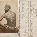 Fotografie, která surovostí vypověděla o otroctví víc než mnohá svědectví - Escaped-Slave-Gordon-CDV-Portrait,-1863